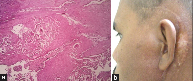 metachronous squamous cell carcinoma of bilateral external auditory