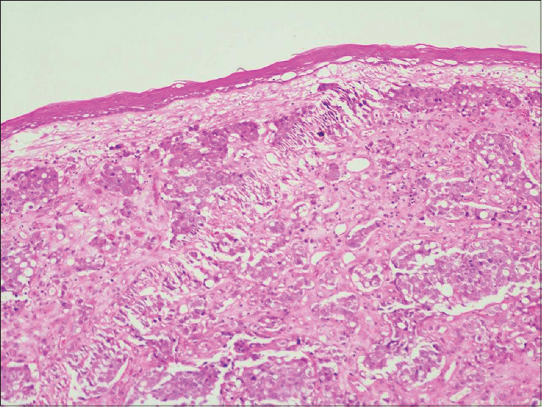 Figure 3: Histopathology × 100 magnification showing metaplastic squamous epithelium with underlying nests of neoplastic cells