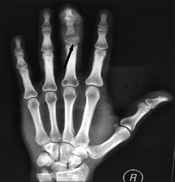 Figure 1: X-ray of the right hand showing a soft-tissue swelling over the middle finger with pathological fracture